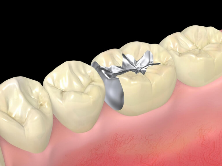 けいすけ歯科医院で行う口臭治療2