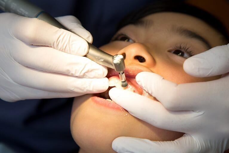 けいすけ歯科医院で行う口臭治療4