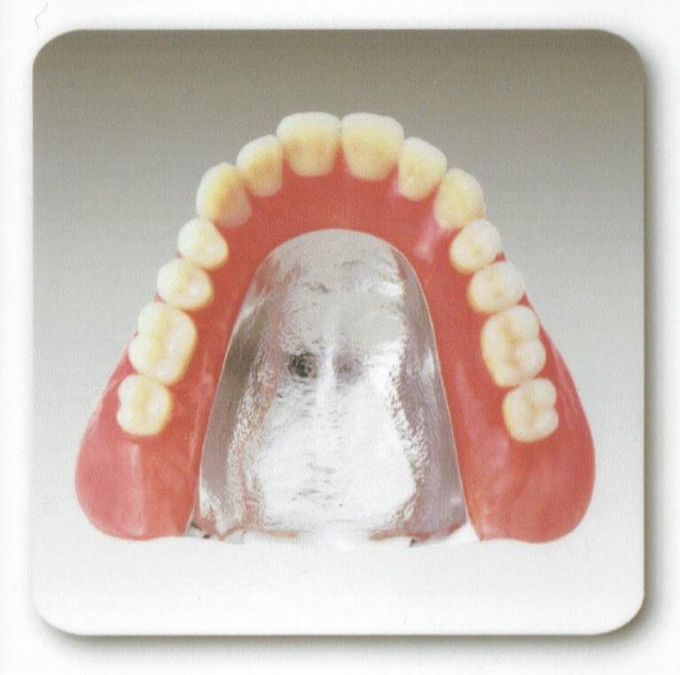 安全性の高いチタンの入れ歯