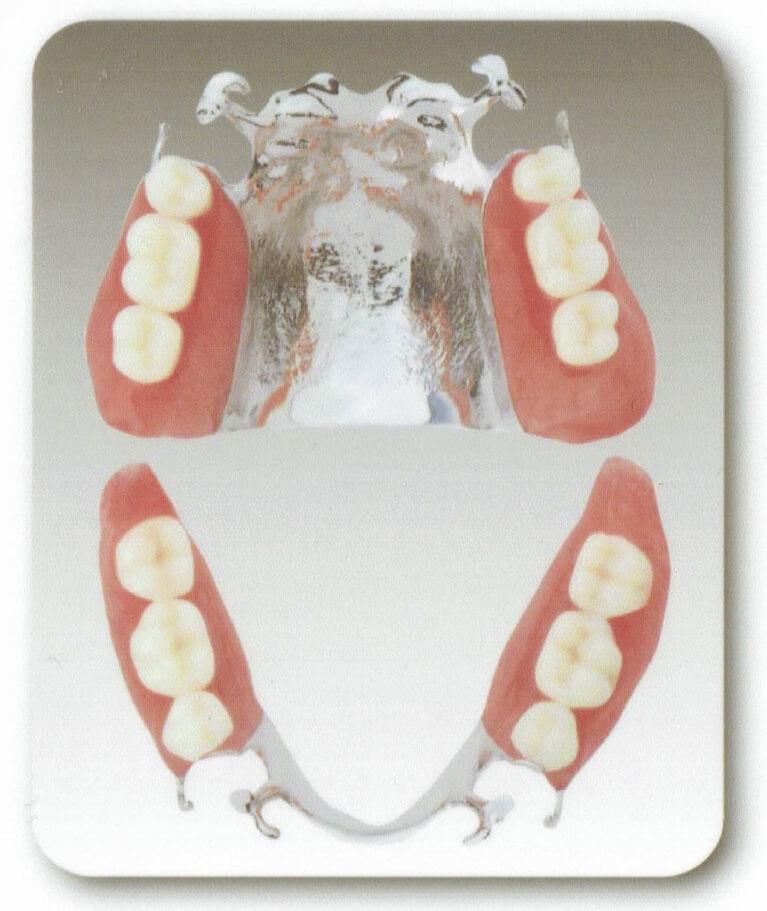 薄くて丈夫なコバルトクロムの入れ歯