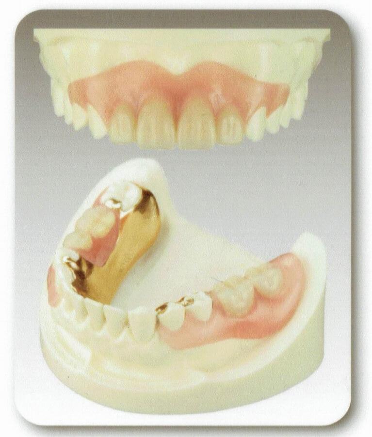 金属のバネがない入れ歯(目立たない入れ歯)