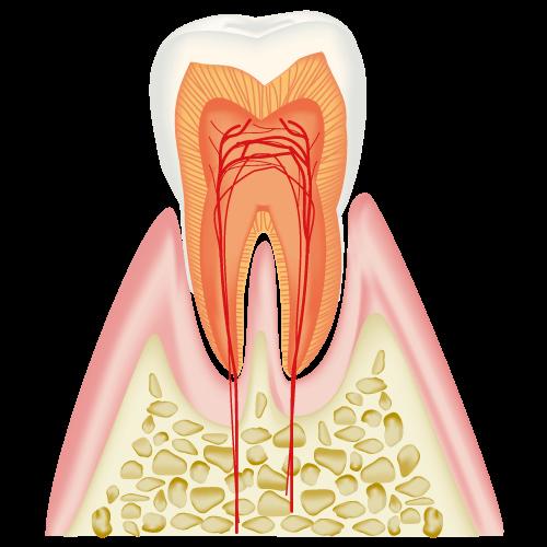 C0  ごく初期のむし歯