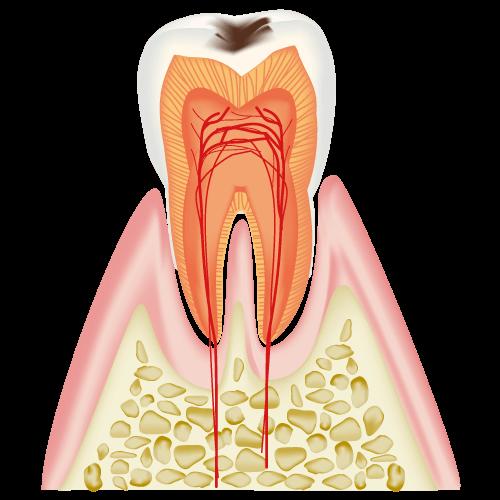 C1 エナメル質のむし歯