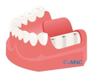 人工歯根(インプラント体)の埋入