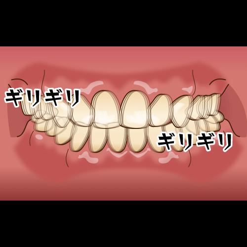吹田・江坂でマウスピース、ナイトガードを作製しているけいすけ歯科医院