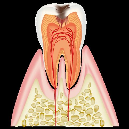 C2(象牙質の虫歯:3割負担の場合)
