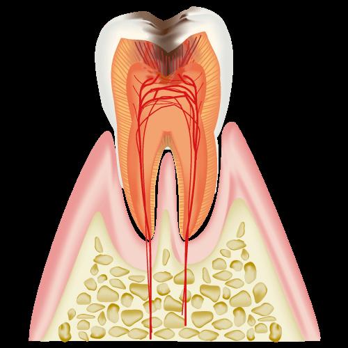 C3(神経まで達した虫歯:3割負担の場合)