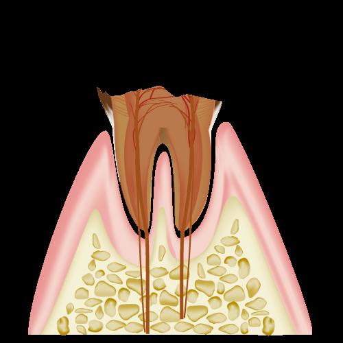 C4(歯根まで達した虫歯:3割負担の場合)