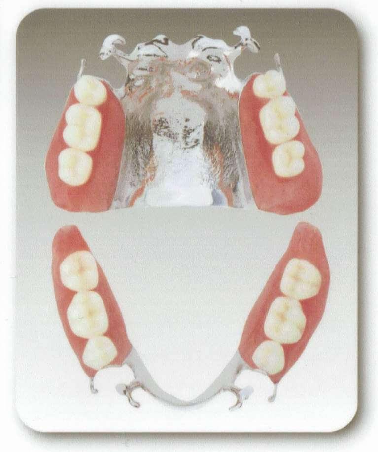 チタンの入れ歯
