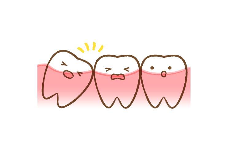 吹田の江坂で親知らずの抜歯なら、けいすけ歯科医院へ