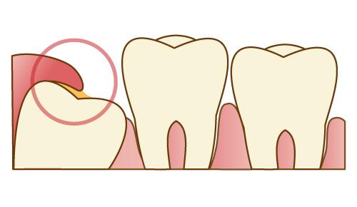 親知らずのまわりの歯茎が腫れている