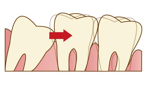 歯並びの乱れの原因になっている